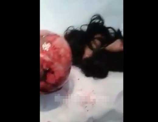 【女 グロ】頭皮ズル剥けマンさんの手術映像がコレ 綺麗に頭の皮だけ剥けてツルツルですやんw ※グロ動画