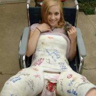 【エロ画像】両足折れた女の子のマンコ部分が超絶エロい件w自分ハメさしてもらっていいっすか???