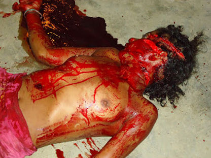 【エログロ】おっぱい丸出しで路上で死んでる血まみれ女の子に欲情できるやつはちょっとこいw 画像あり