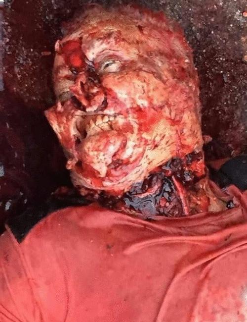 【殺人犬】世界最強のワンちゃんに喧嘩を売った男性の末路がこれ→お顔周りを念入りに食べられておりますwww ※グロ画像