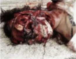 【女 死体】行方不明になっていた19歳の少女さん 顔面を完全に削られ死亡してるが発見された模様 ※グロ画像