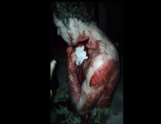 【血まみれ】首を深々と切られてのに普通に話しかけてくる男性がゾンビにしか見えない件 ※グロ動画
