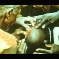 【グロ動画】アフリカの伝統的な脳手術が受けたくなさすぎる件w医学の知識無いのに頭カチ割ってええんかいwww ※閲覧注意