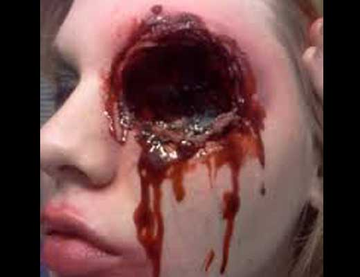 【グロ画像】取り憑かれた女の子が間違った悪魔祓いの儀式に参加した結果→両目もげーwww ※閲覧注意