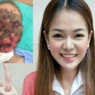 【グロ画像】この美女さん ヤブ医者から危ない注射を受けた結果→顔面崩壊し無事死亡・・・ ※閲覧注意