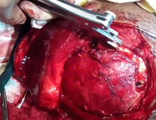 【グロ動画】回頭手術中に取り出された腫瘍がミキプルーンにしか見えないんだがwww