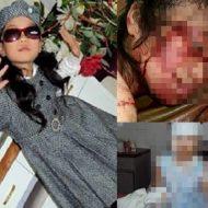 【グロ画像】この少女さんが一人でお留守番してた結果→ナイフ装備の泥棒「こんちわw」全身めった刺しされてるとかエグ杉内・・・ ※グロマップ