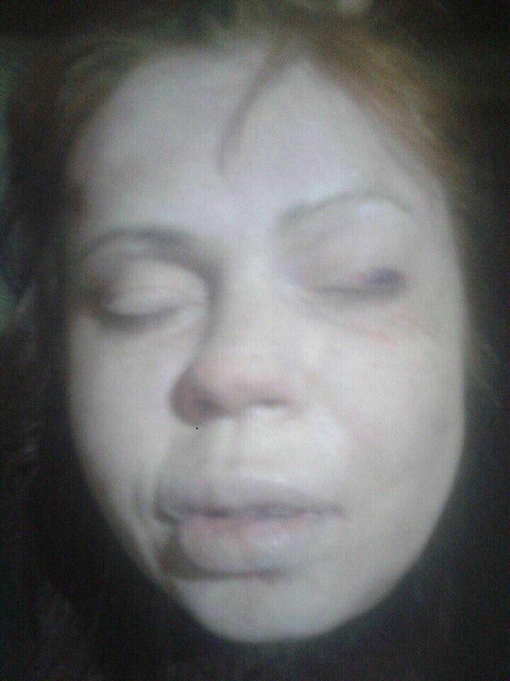 【夫婦逮捕】ロシアで発覚した過去最悪のカニバリズム事件 変態性癖を持った犯人が撮影した女性の遺体自撮りがコレ・・・ ※グロ画像