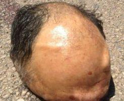 【グロ動画】道路にハゲカツラ落ちてるな~と思ってたら頭ズル剥けおじさんの混じりっけない頭頂部だった件www ※閲覧注意