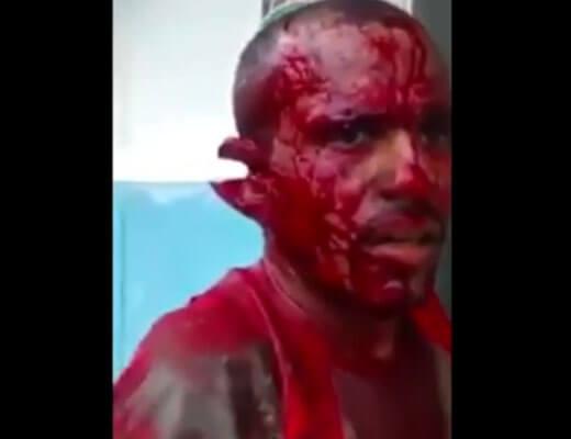 【グロ動画】今さっきまでマチェットで殺し合いしてた男性が完全にホラー過ぎるんやが・・・