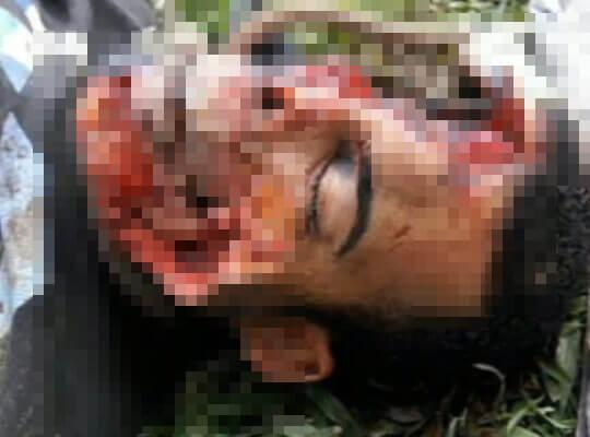 【グロ動画】殺害されて遺棄された男性 野生動物に顔面や内臓を食い散らかされてるんやが・・・