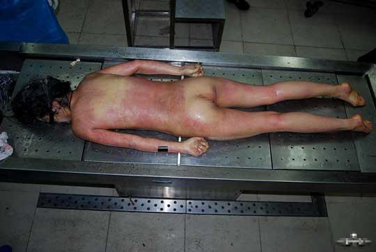 女全裸解剖グロ画像