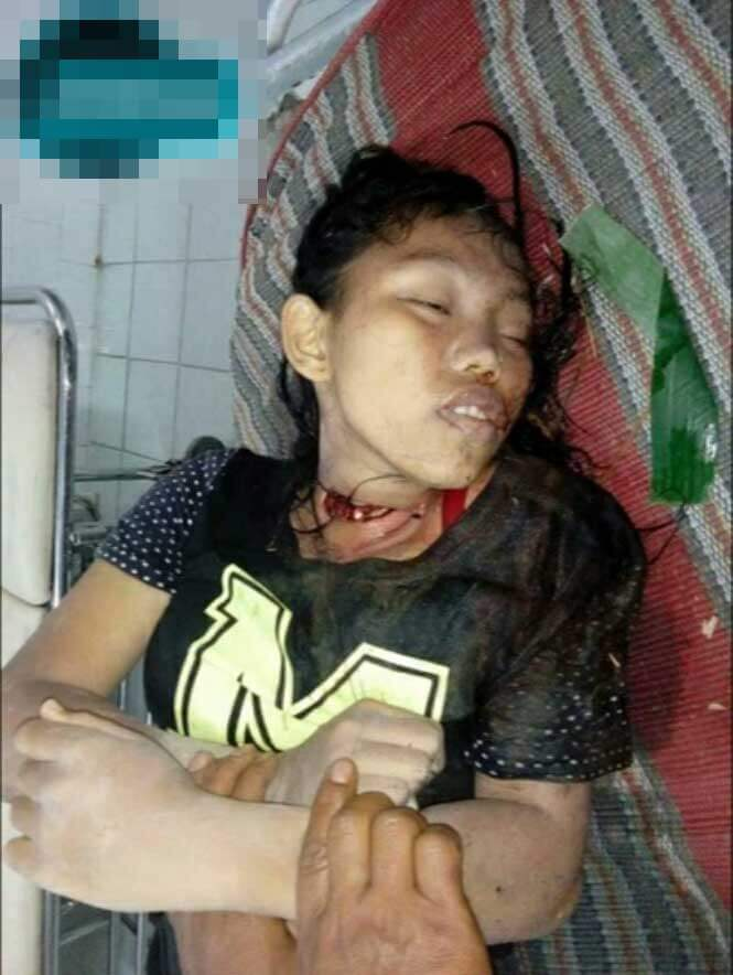 16歳の少女の死体グロ画像
