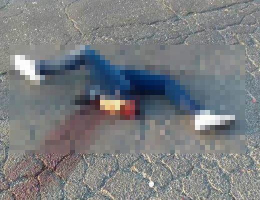【グロ画像】12歳の子どもたちが事故で千切れる