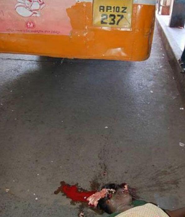 【グロ画像】幼女がトラックに頭を轢かれて中身が垂れ流されている光景が閲覧注意過ぎる・・・
