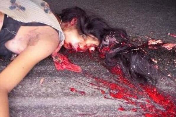 少女事故グロ画像