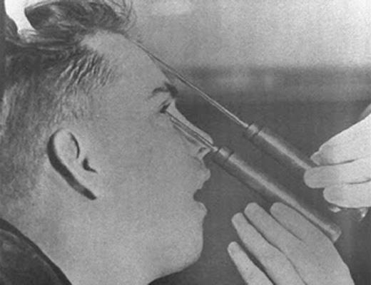 【閲覧注意】目から針を刺して脳みそをぐちゃぐちゃするロボトミー手術