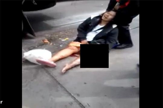 【グロ注意】足をトラックに轢かれた女性・・・見たこと無い色のモノが出てきてる・・・
