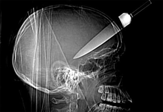 【閲覧注意】頭蓋骨を貫通した大型ナイフを除去する映像が痛すぎる!!