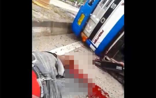 【グロ動画】トラックで事故を起こした男性の脚が皮一枚で辛うじて繫がってる・・・