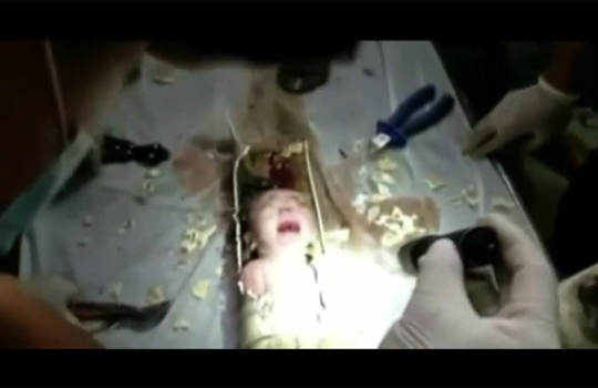 【超閲覧注意】ぽっとん便所で気張ったら赤ちゃんが出た件
