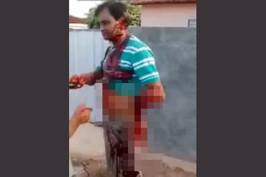 【グロ動画】ブラジルで襲われて左手だけで済んだことが幸い・・・ ※閲覧注意