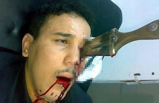 【グロ画像:死体】ナイフが顔面に刺さったり目に刺さったり、頭部を負傷した画像20枚