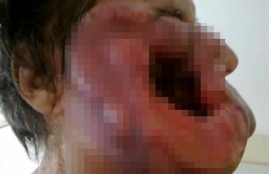【閲覧注意:怪我】感染症?顔面に穴が開きラフレシアみたいになってしまった女性