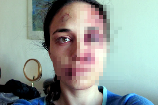 【閲覧注意】美人の顔が・・・虐待が酷くなっていく様を毎日撮影した写真・・・