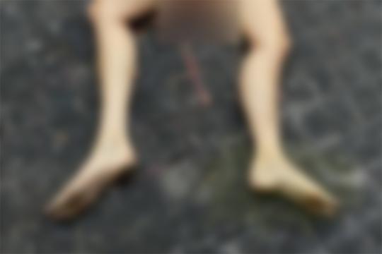 【閲覧注意】股から何か出てる…。とある女性の死体が話題に(4枚)