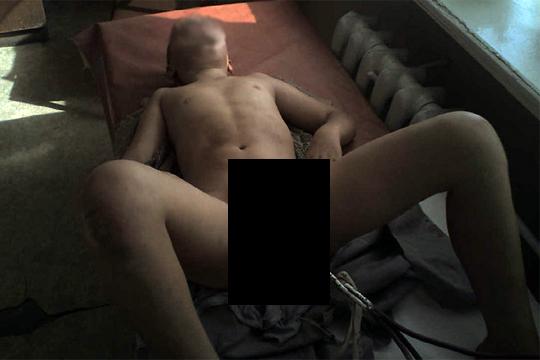 【閲覧注意】12歳の男の子の性器から肩にかけての金属棒突き刺さり・・・