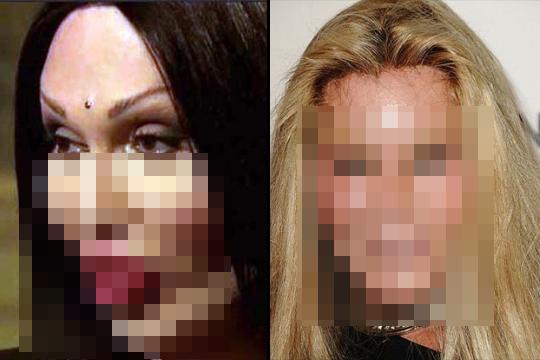 【閲覧注意】整形手術に失敗した女性の悲惨な現状・・・