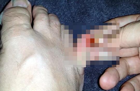 【グロ動画】痛い痛いっ!!足の小指の爪を徐々に剥がしていく男