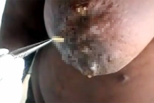 【グロ動画:鳥肌】爆乳に穴を空けて住み着いた蛆虫を取り出す鳥肌映像・・・