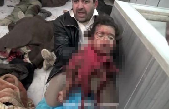【激グロ動画】学校を襲った爆弾・・・幼女は顔以外肉片に・・・