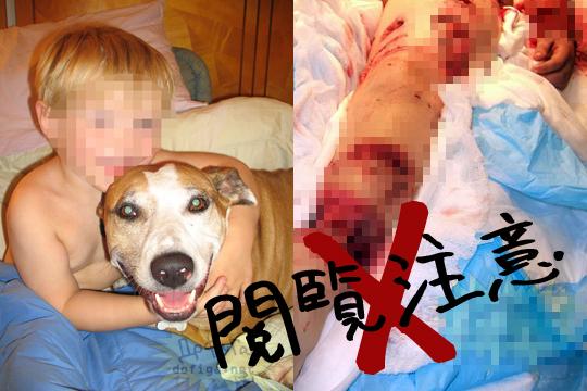 【グロ画像】愛犬が息子を食べてたんだけど・・・【画像あり】