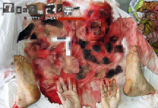 【グロ画像】グロ過ぎるバッラバラの死体画像をまとめてみた【画像15枚】