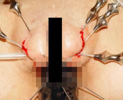 【エログロ】乳首やクリトリスを針で刺していく!過激すぎる変態SM画像まとめ