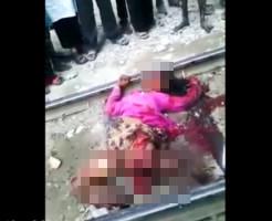【グロ注意】電車に轢かれ運悪く生き残ってしまった若い女性・・・