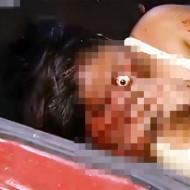 【超閲覧注意】これはアカン!女性の目玉が飛び出し皮がめくれ・・・トラウマ注意