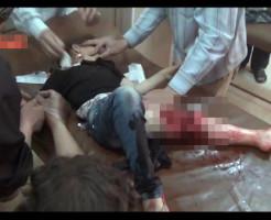 【グロ動画】爆撃に巻き込まれた少女・・・ ※動画有り
