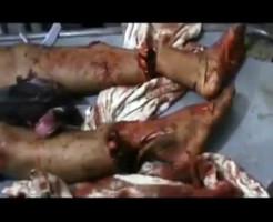 【惨殺映像】まず足首を切って逃げれなくしてからの目をくり抜いて殺す・・・