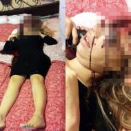 【グロ画像】妊娠して悩んだ女子高生→自室で脳みそブチ撒け自殺・・・