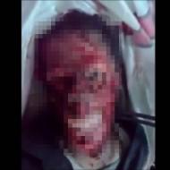 【閲覧注意】死んだ後でも顔の皮剥がされるってどんな気持ちなんだろう・・・ ※動画あり