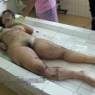 【グ●画像】飲酒運転で死亡した女子大学生の死体きれいにします・・・ ※閲覧注意