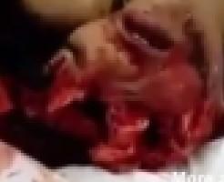 【美女死体】女の引き裂かれた死体を見て死因を考察するスレ ※グロ動画