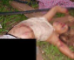 【グロ画像】竜巻に捲き込まれた女の子の損壊具合が・・・