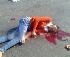 【グロ画像】バイク通学の清純派女子大生さんトラックに顔面ファックされ脳みそ垂れ流して無事死亡へ・・・