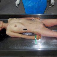 【閲覧注意】死んだ女の子解剖して遺体から子宮取り出してみた ※グロ画像