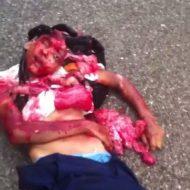 【少女 死体】事故でミンチになってしまった女の子さんの亡骸が中身出過ぎてる処理に困ってるんやが・・・ ※グロ動画